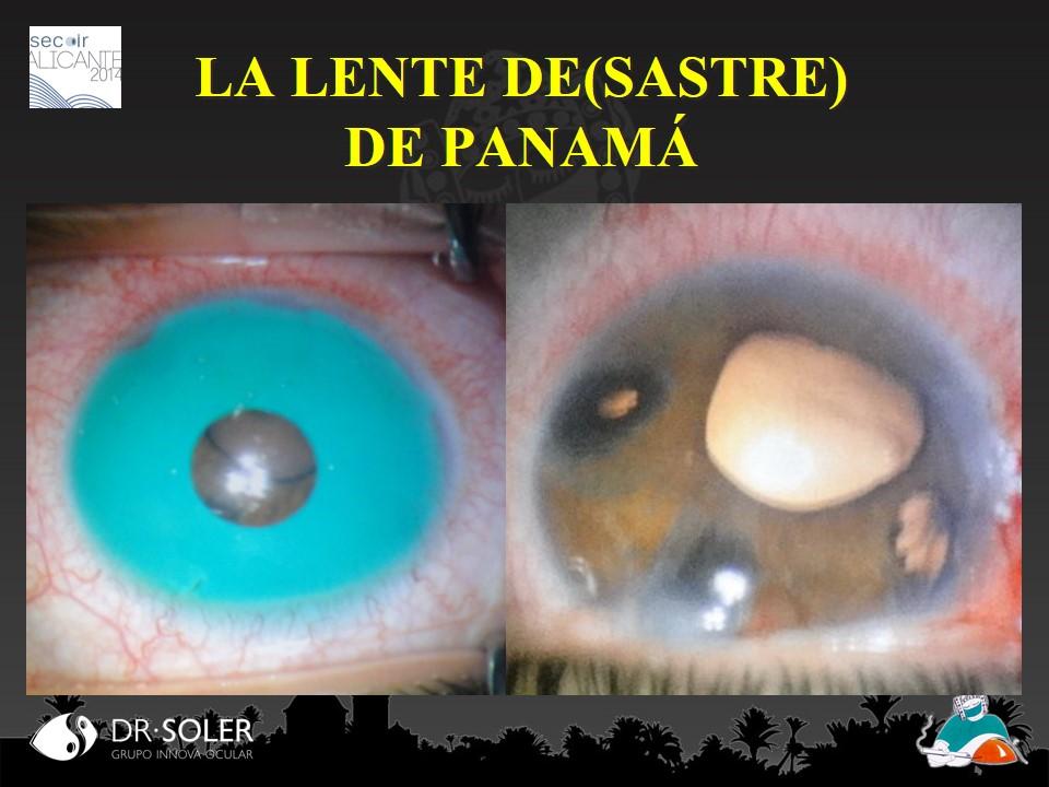 Cuidado con los ojos - 2 3
