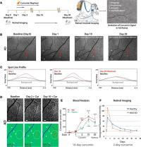 exploración ocular, Alzheimer